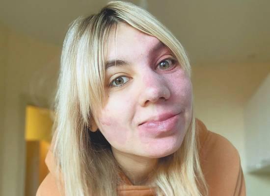 Девушка с пятном на пол-лица рассказала, как смогла полюбить себя